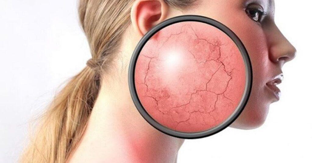 Cách điều trị da bị nhiễm corticoid tại nhà