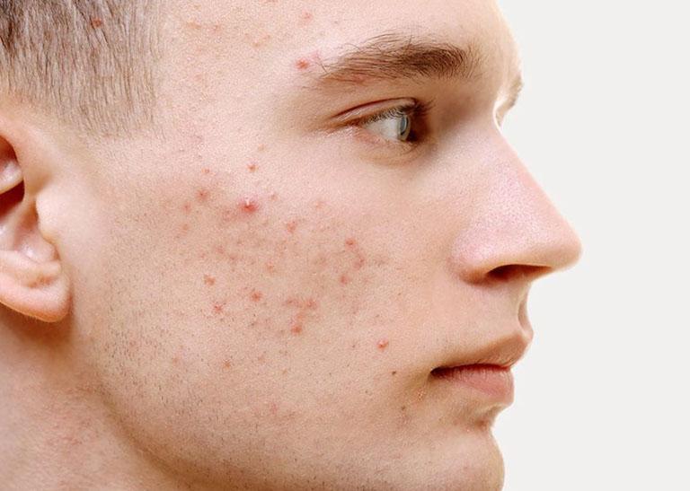 Mụn đỏ trên làn da nam giới